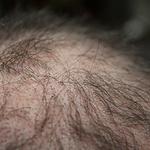머리카락 숭숭 빠지는데... 탈모치료제 효과 있을까?