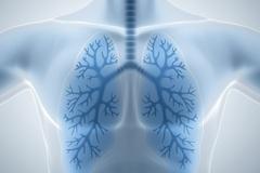 [지식카페] 건강검진 시 폐암 진단 놓친 의원에 보상 받을 수 있을까?
